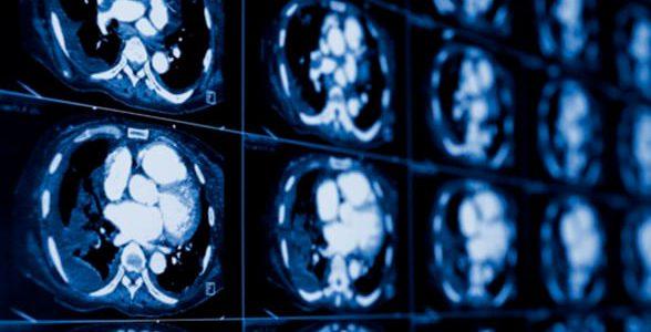 foto de imagem de tomografia